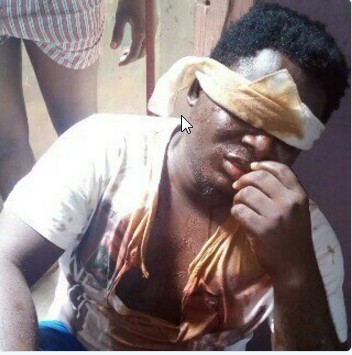 #LifeInUnilag: Popular MC/Hypeman, Olabode Saygee badly molested by Police in Unilag
